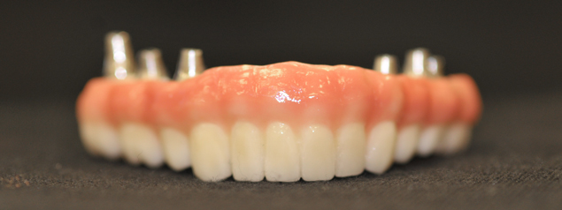 Abutment and Screws at Phoenix Dental Laboratory